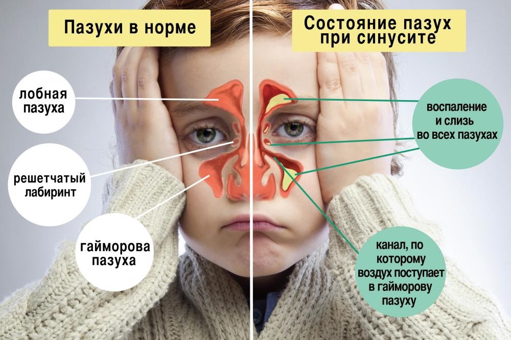 Офтальмит