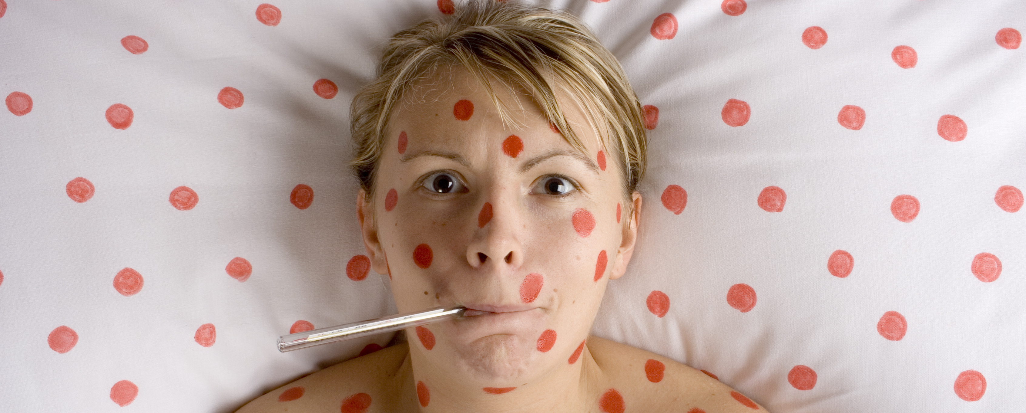 woman with red spots on face and body